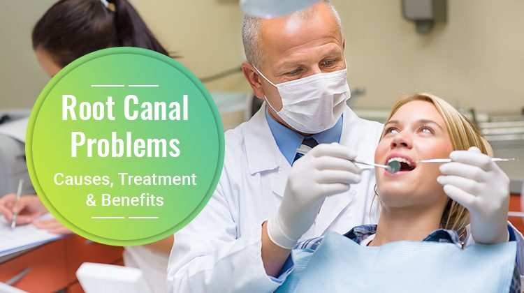 Root Canal Problems - Causes, Treatment & Benefits