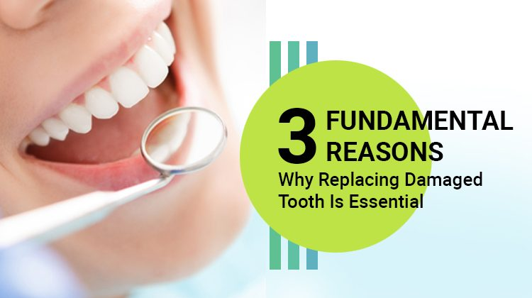 3 Why Replacing Damaged Tooth Is Essential